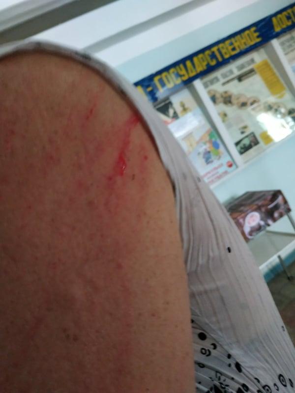 """Пассажирка расцарапала руку водителю троллейбуса. Фото: """"Акцент"""""""