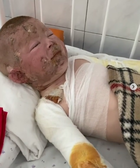 Маленький ребенок получил серьезные ожоги / фото: Злата Некрасова
